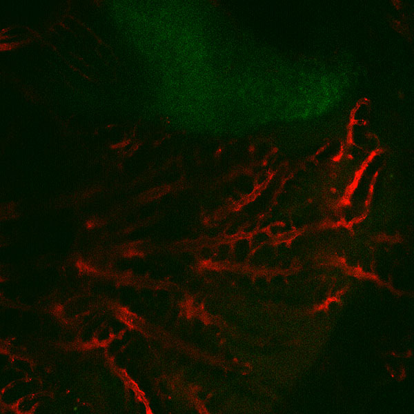 Red Veins And Green Thymus Copy Copy